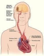 obat herbal stroke ampuh, obat herbal untuk stroke, obat herbal stroke ringan, obat herbal stroke berat, obat herbal stroke mata, obat stroke alami, obat stroke herbal, obat stroke ringan, obat stroke angkung, obat stroke sebelah kanan, obat stroke angkung, mengobati stroke secara alami, mengobati stroke secara alami, mengobati stroke ringan secara alami, mengobati stroke dengan herbal, menghindari stroke, mengatasi gejala stroke.